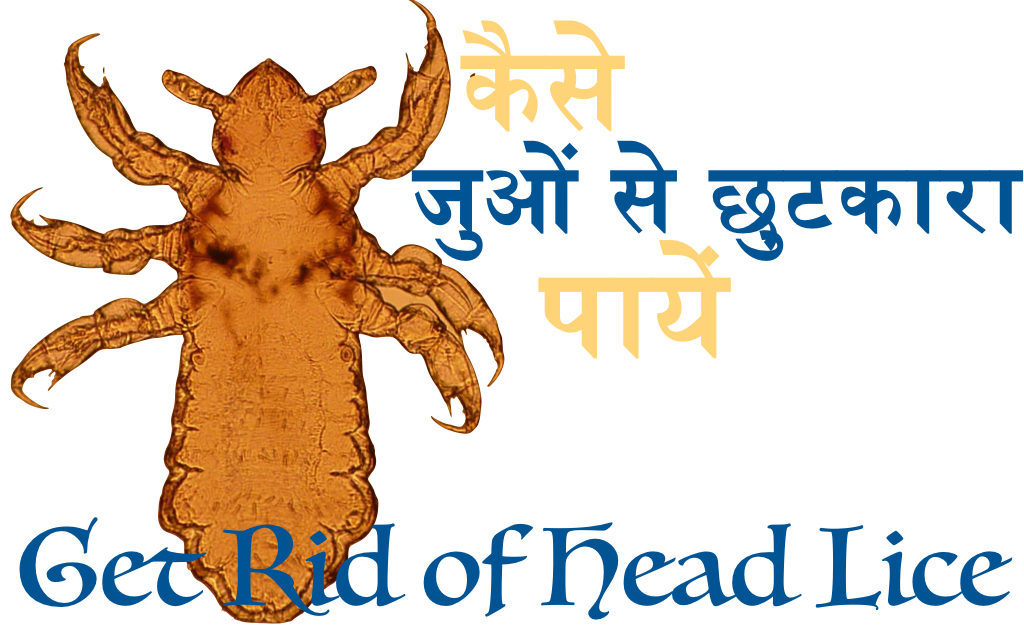 कैसे सिर के जूँ या जुओं से छुटकारा पायें (How to Get Rid of Head Lice, Top 5 Remedies to Get Rid of Lice)