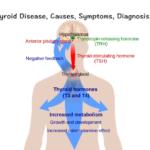 कहीं आपको थायरॉइड तो नहीं ?, What is Thyroid Disease, Causes, Symptoms, Diagnosis