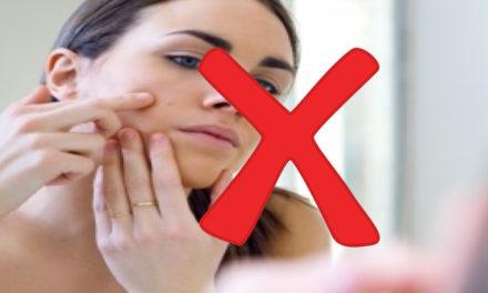 मुँहासों/पिम्पल्स का घरेलू उपचार: Top Home Remedies for Pimples