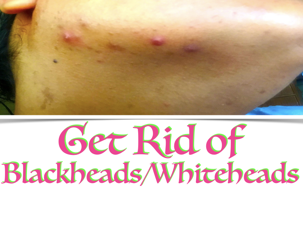 home remedy for blackheads