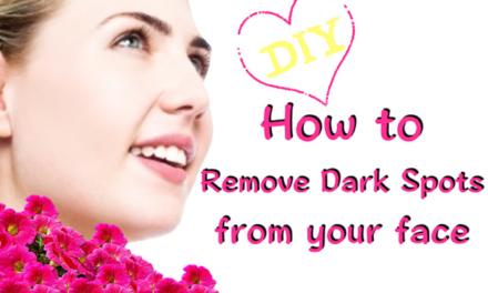 चेहरे के काले धब्बे हटाने के घरेलू इलाज : Home remedies to remove dark spots of face