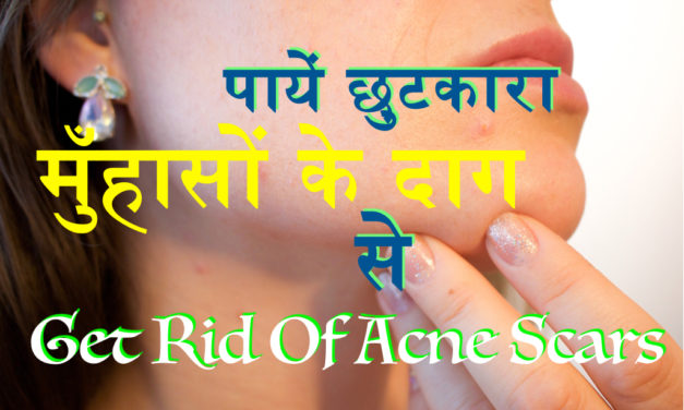 मुँहासों के दाग के इलाज के लिए घरेलू उपाय, Get Rid of Acne Scars, Home Remedy for Acne Scar Treatment