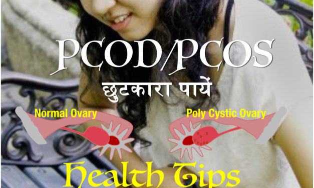 पीसीओडी/पीसीओएस (PCOD/PCOS) : पोलिसिस्टिक ओवेरियन डिजीज/पोलिसिस्टिक ओवेरियन सिंड्रोम (Polycystic Ovarian Disease/Polycystic Ovarian Syndrome) के लक्षण और इलाज