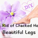 कैसे पायें छुटकारा फटी एड़ियों से, How to Heal, Treat Cracked Heels, Foot Care Tips, DIY