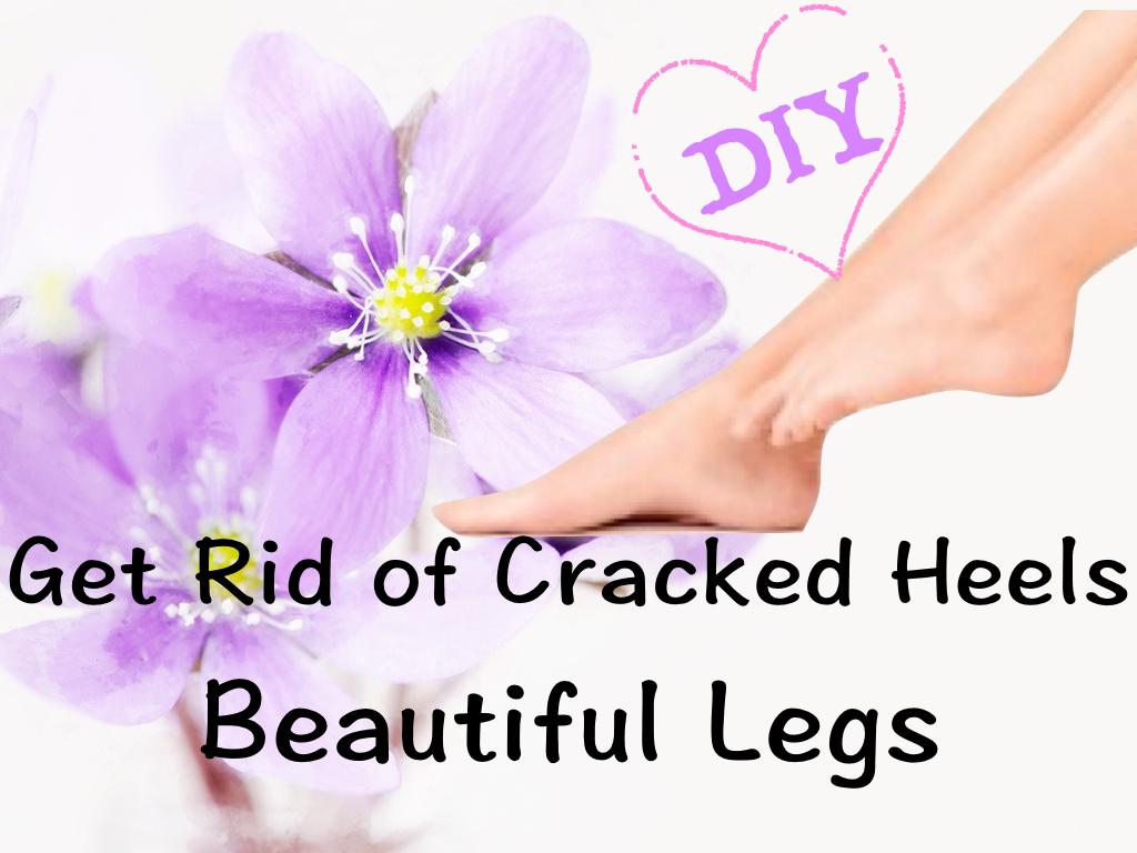 How to heel cracked heels