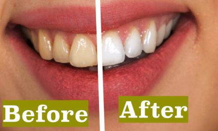 दांतों को चमकदार बनाने के घरेलू नुस्खे (Home Remedies for Teeth Whitening)
