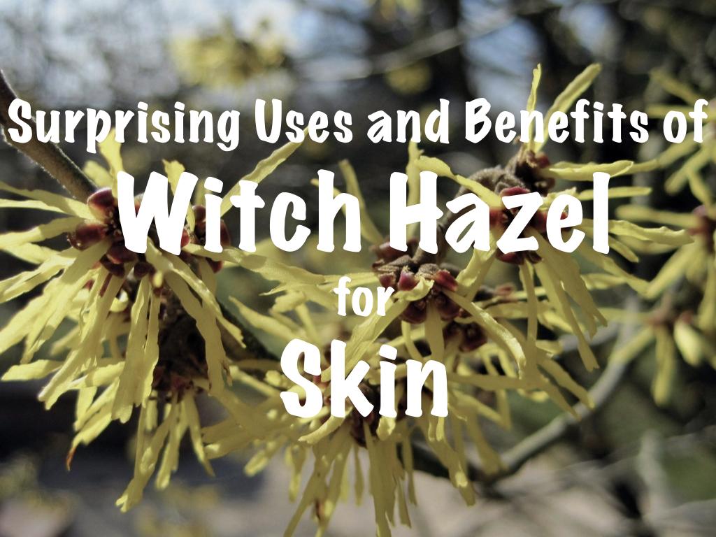 Witch hazel for skin, pimples, blackheads